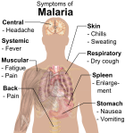 symptoms_of_malaria